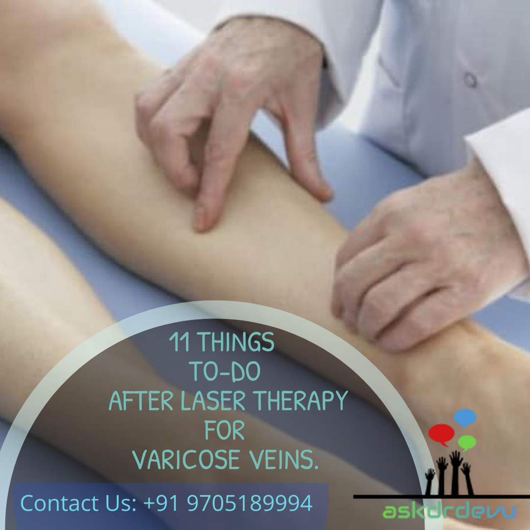 11 Things TO-DO after LASER THERAPY for Varicose Veins.