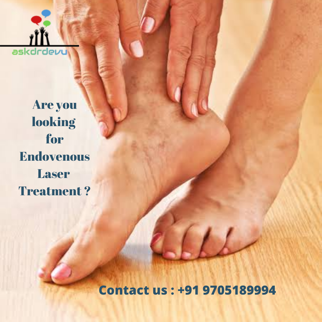 Endovenous laser ablation therapy